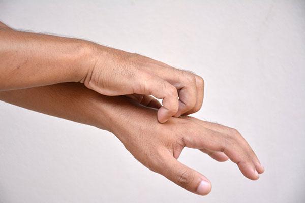 7 دلیل خارش شدید پوست