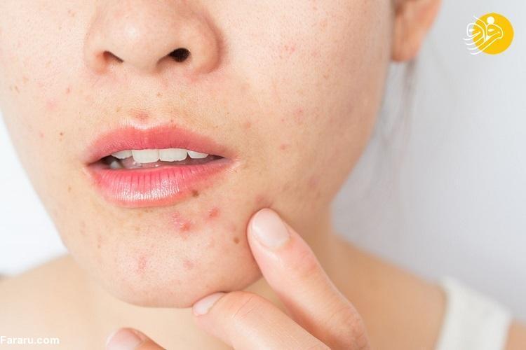 هر آنچه باید درباره درمان جوش صورت و آکنه بدانید